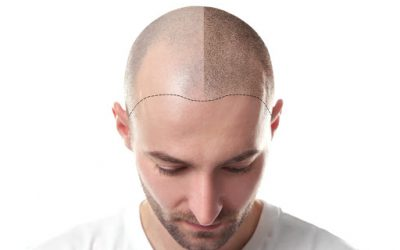 Fixed Price in Hair Transplantation